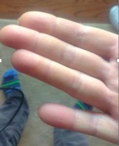 Megégett kéz